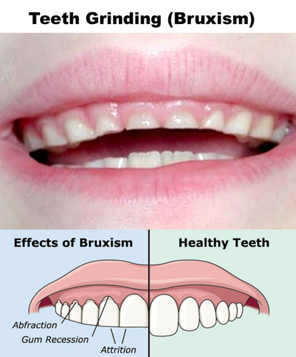 teeth grinding \u0026 mouth guards powersmile dental centre surreywhat are the causes of teeth grinding?